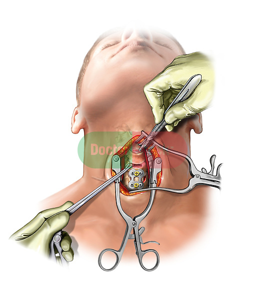 C5-6 bone fusion, C3-4 and C4-5 discectomy