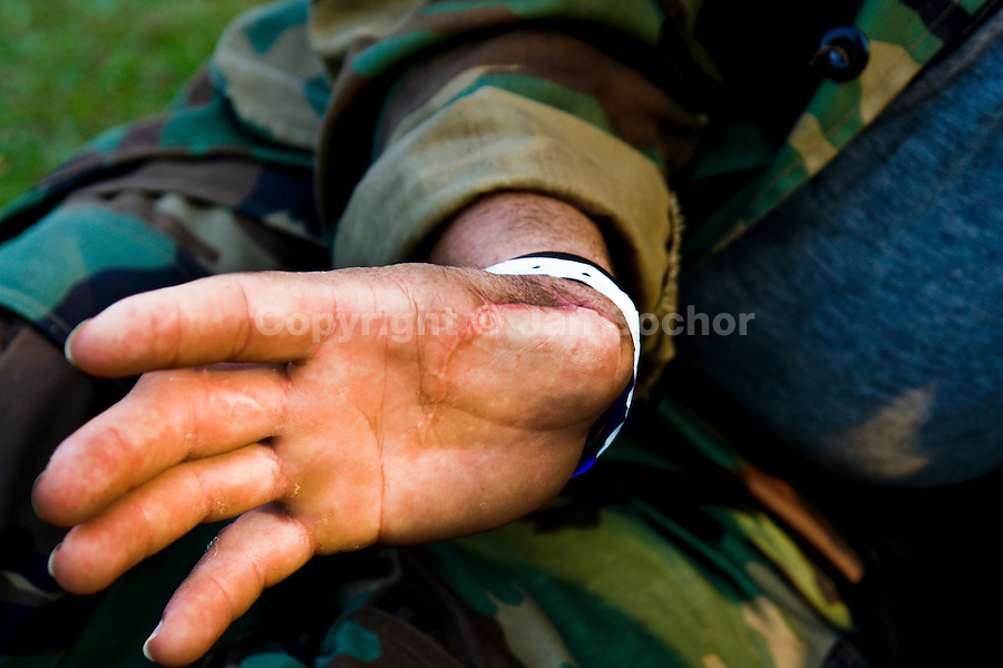 A Colombian paramilitary soldier (AUC) shows an injury coming from fights with the guerilla (FARC) in the Meta Department, Colombia, 9 April 2006.