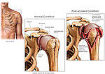 Shoulder Injury - Humeral Neck Fracture