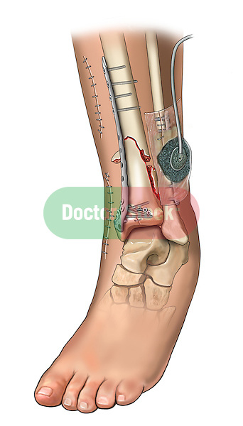 Open tibia and fibular fractures, internal fixations with wound vac over open lateral wound.