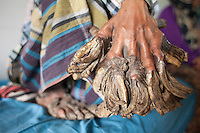 Bangladeshi man Abul Bazadar, 25, lays on his bad at a hospital in Dhaka, Bangladesh. Abul Bazadar has been suffering from a rare skin disease called Human Papilloma Virus since 10 years. His skin appears to have tree roots growing out of it. He has been dubbed the 'Tree Man' and doctors from around the world are working on a cure. Dhaka, Bangladesh. 30 Jan, 2016