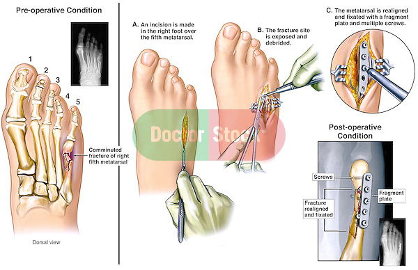 This medical exhibit illustrates a comminuted fracture of the 5th right metatarsal. There is an inset of the injury X-ray.  The surgical steps involved in the realignment and fixation are included.
