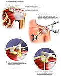Shoulder Impingement Syndrome with Arthroscopic Surgery Decompression. This medical illustration series pictures the left shoulder with impingement syndrome. It also includes the arthroscopic surgical steps involved to release the shoulder and repair the anatomy.