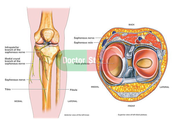 This medical exhibit diagram is an anatomical overview of the anatomy of the left knee and the relationships to the saphenous nerve. ..The first image features an anterior skeletal view of the knee bones clearly labeling the nerves in the region. The second view is a superior view of the tibial plateau and surrounding soft tissues. The tibia, fibula, tibial plateau, saphenous nerve and its infrapatellar and medial crural branches are all labeled and identified...