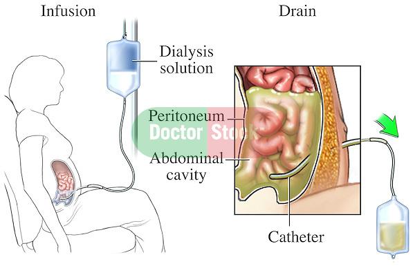 This medical exhibit illustrates peritoneal dialysis of the abdominal cavity.