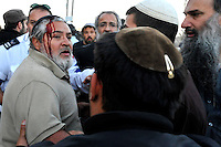 A Jewish settler who was wounded during clashes as the Israeli army evicted a group of settlers from a disputed building in Hebron. The Israeli high court had rejected the settlers' claim that they legally bought the house from its Palestinian owner. As the house became a symbol of defiance, the few families living there were joined by a mob of some 1,500 radical right-wing youths, who went on a rampage and attacked Palestinians in the mixed West Bank city.
