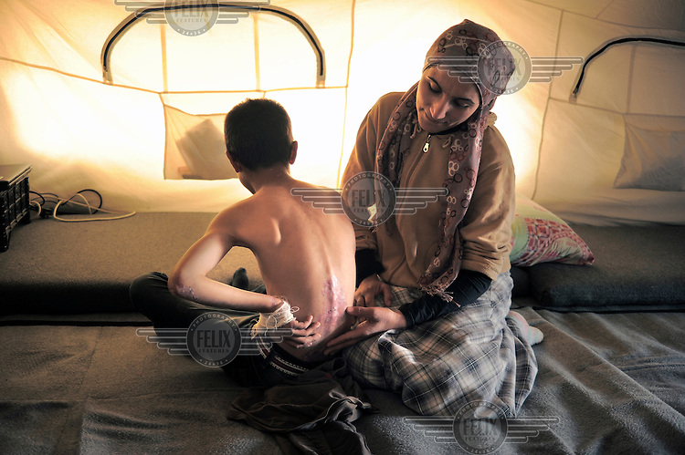 At the Kawergosk Syrian Refugee Camp a mother looks at her son's back, scarred from blisters the result of the rare skin disorder Epidermolysis bullosa.