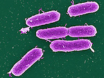 Bacteria, Salmonella typhimurium bacteria, causes food poisoning, primarily associated with cattle but it has spread to a range of food animals, especially pigs and chickens