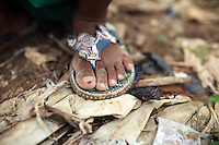 A fly sits on a young boy's foot in a slum community in central Jakarta. It is estimated over 25% of Indonesians live in slum areas, with more than 5 million people living in slum areas in the greater Jakarta area.