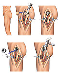 Graphically depicts a total hip joint replacement surgery using five graphics.  The first illustration shows an incision line on the left hip. The remaining images depict the following surgical steps: 1. Removing the damaged femoral head using a Stryker saw; 2. Reaming out the acetabulum (hip socket); 3. Placing the acetabular component of the hip joint; and 4. Hammering the femoral component into the reamed out femoral canal.