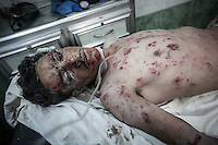 A Syrian civilian gets emergency medical assistance at one hospital in Tarik Al-Bab neighborhood as he arrives wounded by mortar explosion in Hananu district, a neighborhood heavely punished by aircraft and heavy shelling in the northeast of Aleppo City.