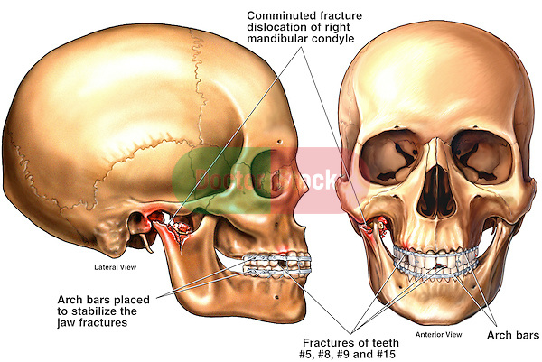 This custom medical exhibit features anterior (front) and lateral (side) views of the skull and jaws revealing post-operative fixation of a comminuted fracture of the right mandibular condyle with Erich arch bars. Also noted are several fractures to the teeth.