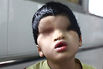A child born without eyes is pictured in the Agent Orange children's ward of Tu Du Hospital in Ho Chi Minh City, Vietnam. About 500 of the 60,000 children delivered each year at the maternity hospital, Vietnam's largest, are born with deformities, some because of Agent Orange, according to doctors. May 1, 2013.