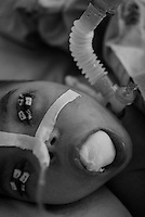 Child on the respirator with eyes sewed for protecting the eyeballs from drying.