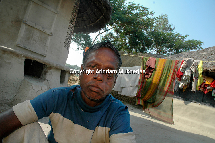Rabin Majumdar was attacked by tiger while at work inside the deep forest and miraculously could escape death but left with deep scars on face and shoulder. He used to collect honey, catch fish and crab from the creeks. After this incident he never dared to enter the forest. Sunderban, West Bangal, India. Arindam Mukherjee.