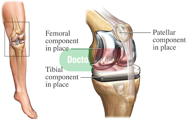 Total Knee Joint Replacement Surgery (Athroplasty). This illustration features an orientation view of the left leg with a  single detailed view of the bones of the left knee showing the appearance of the joint after a total knee replacement. Specifically labeled are; Femoral component in place, tibial component in place, and patellar component in place.