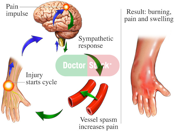 This medical exhibit accurately depicts the complex chain of events involved with reflex sympathetic dystrophy (RSD) of the hand and wrist. The pain pathway of RSD, also known as Complex Regional Pain Syndrome, or CRPS, is shown originating in the hand, following a course to the brain, triggering a sympathetic inflammatory response (blood vessel spasms), resulting in burning, pain and swelling at the injury site.