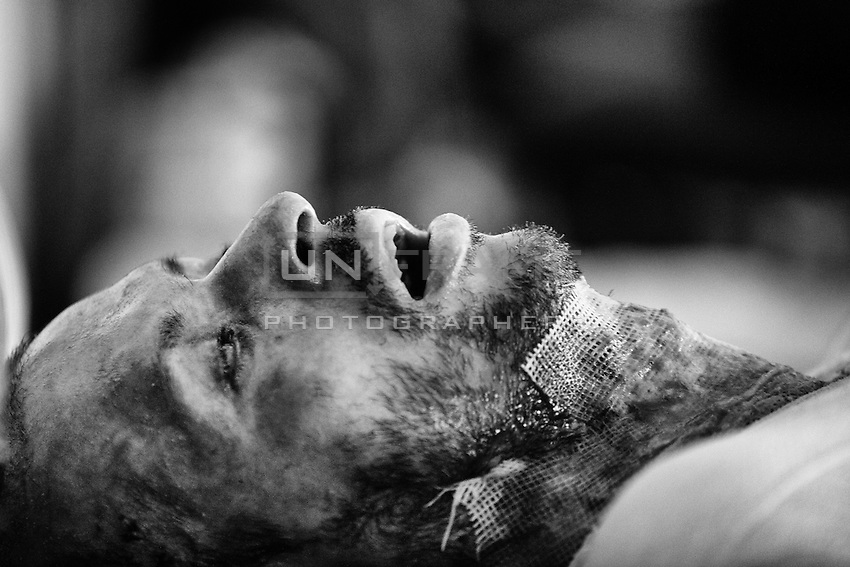 Ripon, 29 percent of his body burnt when unknown people torched his bus. Dhaka, Bangladesh