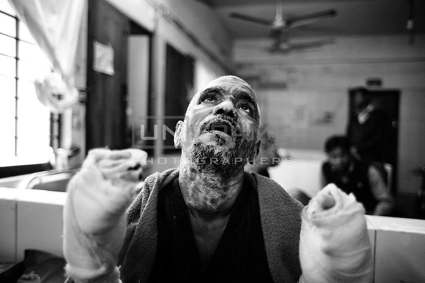 Lokmain Hossian, 55 years old vegetable seller from Rangpur. 11 percent of his body burnt when blockage supporters torched their truck at Gazipur area. Dhaka, Bangladesh