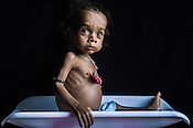 A Month in a Life of a Malnourished Child