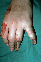 Fracture of the fifth ( little ) finger. This image may only be used to portray the subject in a positive manner..©shoutpictures.com..john@shoutpictures.com