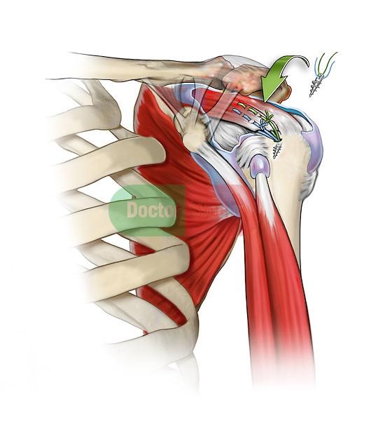 Shoulder Bursectomy and Rotator Cuff Repair; this medical illustration illustrates a shoulder bursectomy in a rotator cuff repair.