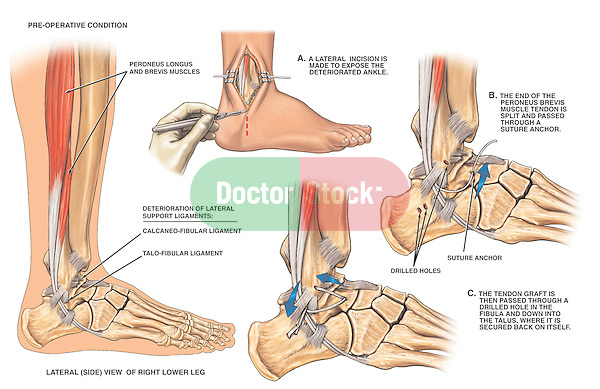 Accurately depicts instability of the right ankle ligaments with corrective surgery. Labels for the peroneus longus muscle, peroneus brevis muscle, calcaneo-fibular ligament, and talo-fibular ligament. Surgical steps: 1. Incision exposing deteriorated ankle ligaments; 2. Drilling of ankle bones with section of the peroneous brevis muscle tendon used to replace the ligaments; and 3. Placement of tendonous graft into drilled holes in the fibula and talus, anchored by sutures.
