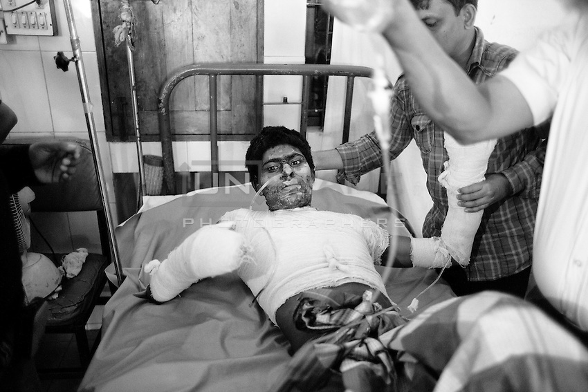 Alamgir Hossian, 28 years old Bus assistant, 20 percent of his body burnt when unknown people torched his bus at Maowa on 7th December 2013. Dhaka, Bangladesh