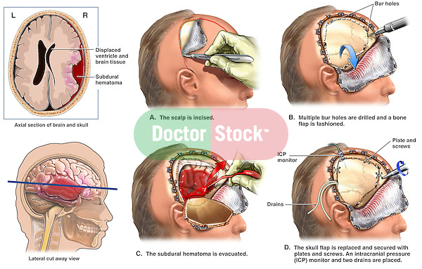 Brain Surgery - Severe Head Injury with Surgical Craniotomy. This full color custom medical exhibit shows various steps of a surgical craniotomy procedure performed to evacuate a large right sided subdural hematoma. The initial image is an axial (cut) view of the pre-operative condition. The craniotomy  is shown in four steps including the creation of a scalp flap, the removal of a section of the skull (cranium), the opening of the dura  and the suctioning off of the underlying hematoma (blood).