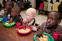 An albino child eats with other children at his boarding school in Dar Es Salaam. Discrimination against albinos is a serious problem throughout sub-Saharan Africa, but recently in Tanzania albinos have been killed and mutilated, victims of a growing criminal trade in albino body parts fuelled by superstition and greed. Limbs, skin, hair, genitals and blood are believed by witch doctors to bring good luck, and are sold to clients for large sums of money, carrying with them the promise of instant wealth.