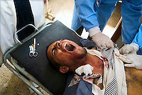 Baghdad, Iraq, April 5, 2003.Al Kindi hospital emergency ward: doctors insert a chest tube to Nawfel Al Jenabi, 19, wounded in the chest in front of his home at Zayuna by US bomb shrapnel. More than 70 US bombardment victims were admitted in less than 2 hours after a B52 carpet bombing on the Northern outskirts, about a fifth of these were military personel.