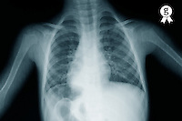 X-ray image of young boy's (12-13) torso (Licence this image exclusively with Getty: http://www.gettyimages.com/detail/sb10067234l-001 )