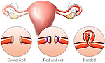 This medical illustration depicts fallopian tubal ligation surgery (tied tubes) options, including the following: cauterized ovarian tubes, cut ovarian tubes, or banded ovarian tubes.