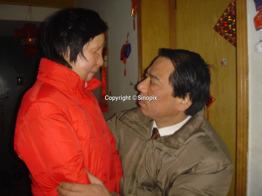 11 year old Liu Fangyuan (Yuan Yuan) stands beside her father Liu Yuanlin at her family's tiny apartment in Nanjing, China. In 2002, Yuan Yuan's aunt poured sulfuric acid on her face after losing a housing dispute with Yuan Yuan's father. The attack blinded and seriously disfigured Yuan Yuan, while her aunt is serving a life sentence in prison, Yuan Yuan and her family awaits a controversial face transplant...PHOTO BY SHEN / SINOPIX