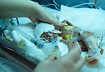 Baby in an incubator Premature Baby Unit Nottingham General Hospital 1980s