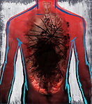 Illustrative image of cancer affected human organ