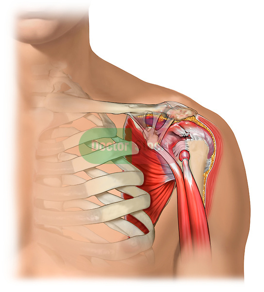 rotator cuff tear; depicts an anterior view of a rotator cuff tear
