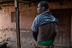 CAR, Bangui: A young man from Yelwa II neighborhood in the PK5 district is showing his scar on his back from a bullet injury during the fight with the anti-balaka in december 2013. 16 april 2016<br /> <br /> RCA, Bangui: un jeune homme du quartier Yelwa II montre ses cicatrices dans son dos due à une blessure par balle lors d'un combat avec les anti-balaka au mois de décembre 2013. 16 avril 2016