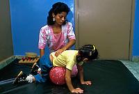 Tratamento de criança deficiente física. Panamá. Foto de Nair Benedicto. Data. 1990.