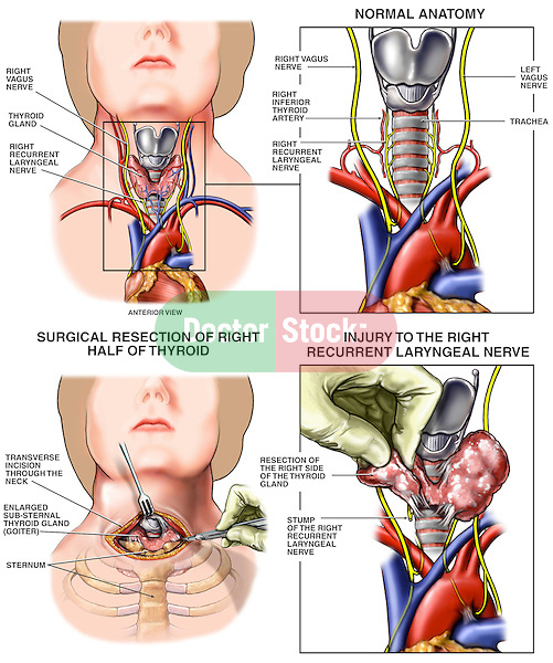 Thyroidectomy with Iatrogenic Laryngeal Nerve Resection Surgery. This medical illustration series compares normal thyroid anatomy with one that was damaged during thyroid lobe removal. It shows the anatomical paths of the nerves in this region, labeling the vagus (CN X) and recurrent laryngeal nerves. Two surgical images reveal the incision into the throat, and an intra-operative view identifying the discovery of the severed stump of the right recurrent laryngeal nerve.