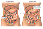 This medical exhibit depicts a bowel surgery resection. The first image illustrates a leak from a pre-existing anastomosis of the ileum (small intestine) with the transverse colon (large intestine). The second image shows the transverse colon removed back to the splenic flexure and an ileostomy placed in the upper right quadrant of the abdomen.