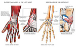 Left Wrist Injury - Sprained Ligaments and Triangular Fibrocartilage.