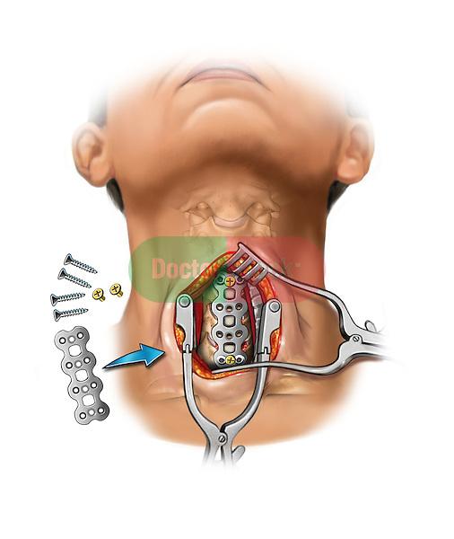 C4-C7 anterior cervical bone fusion