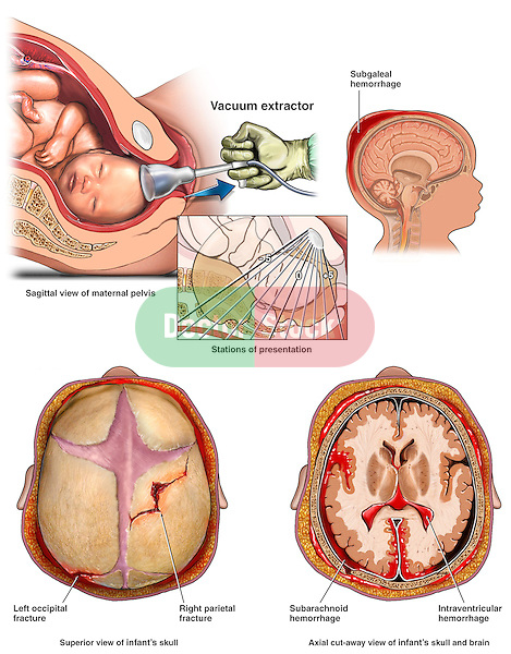 Traumatic Brain Injury During Birthing - Vacuum Extractor Delivery with Widespread Head Injuries. This full color medical exhibit depicts a vacuum extractor delivery with widespread head injuries.  The first image shows a lateral (side) cut-away view of the extraction. The second image shows the stations of presentation. The other three images show the head injuries of the infant as seen from three different views..