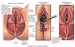 Dramatically depicts a fourth degree episiotomy tear with an insufficient third degree repair and subsequent recto-vaginal fistula. Shows the fourth degree laceration extending from the vaginal opening through the perineal muscles and to the anus. Shows the surgical repair, in which the laceration is sutured closed while the rectal mucosa remains open. Shows the subsequent recto-vaginal fistula resulting from a perforation in the rectal mucosal layer.