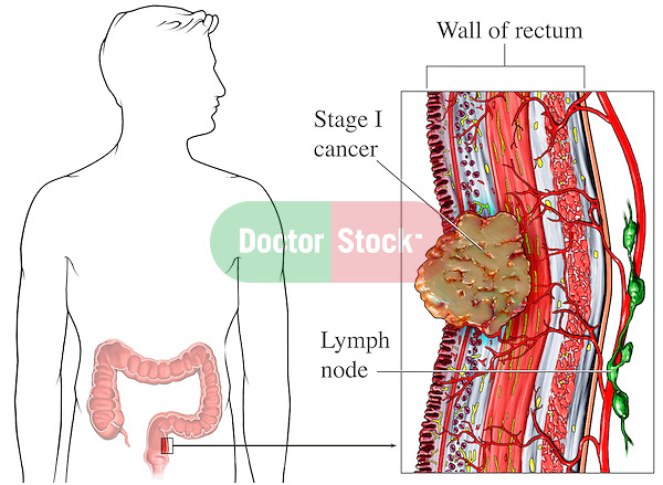 This medical exhibit illustrates the large intestine with a enlarged view of the wall of the colon with cancer.