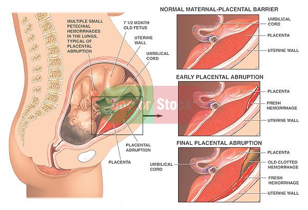 Post-traumatic Placental Abruption Birth Injury.