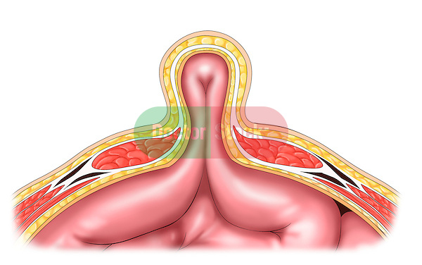 transverse section of incisional hernia