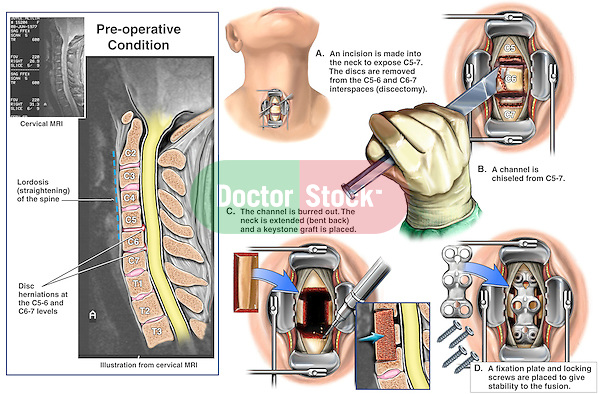 Cervical Spine Injuries with Proposed Spinal Fusion Surgery. This surgical exhibit pictures an MRI film view through the neck illustrating pre-operative disc herniations at C5-6 and C6-7. Additional anterior surgical images reflect the following: 1. Incision into the anterior neck, 2. Decompression corpectomy (cervical vertebral body removal), 3. Placement of a strut bone graft, and finally 4. Insertion of an Orion plate and screws for fusion.