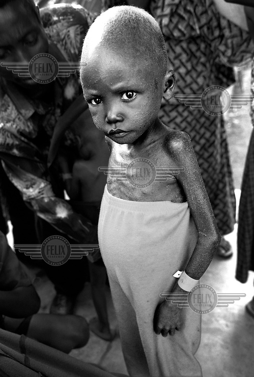 ©Sven Torfinn/Panos Pictures..Eastern Congo, South Kivu, Shabunda, 2002.little boy with bad malnutrition, in a camp of the organization 'Action contre la Faim'. .malnutrition, hunger, war, starvation, children, NGO's, aid rganizations, health care, sichness, disease